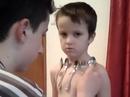 Cậu bé 5 tuổi có khả năng hút kim loại vào người