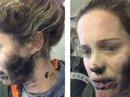 Bỏng mặt vì tai nghe trên máy bay phát nổ