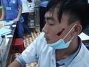 Người nhà bệnh nhân đánh điều dưỡng bị thương