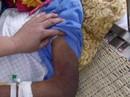 Con trai đánh bố gãy xương sườn, mẻ xương chân và bánh chè