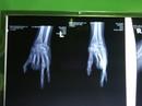 """""""Biến"""" ngón chân thành ngón tay cho cô gái gặp nạn"""