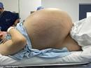 Cứu sống cô gái có u nang buồng trứng 33 kg