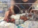 Cặp song sinh sinh non sống sót nhờ được mẹ... đựng trong túi ni lông