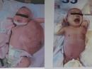 Bé sơ sinh mang u bướu nặng bằng nửa cơ thể