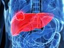 Những dấu hiệu sớm nhận biết bệnh ung thư gan