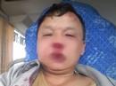 Sau tin nhắn của ông chủ, tài xế xe khách bị côn đồ chặn đánh bầm dập