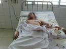 Cứu sống một bệnh nhân bị kéo đâm thủng tim