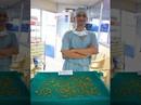 Hy hữu: Bác sĩ gắp 2.350 viên sỏi mật trong cơ thể 1 phụ nữ