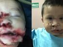 Đang chơi với chó con, bé trai 2 tuổi bị chó mẹ cắn nát mặt