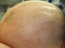 Mỹ: Cắt bỏ khối u buồng trứng nặng tới 60 kg