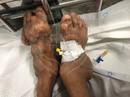 10 năm uống thuốc giảm đau, người đàn ông biến dạng