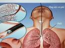 Nữ bệnh nhân tử vong sau nội soi phế quản do mất máu nhiều