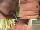 Tắm lá chữa ngứa, bé trai 2 tuổi lở loét khắp người