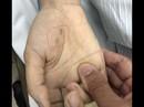 Chẩn đoán nhầm bệnh thú cưng, nữ bác sĩ trẻ tử vong do chó cắn