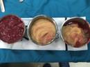 Rút cả lít hóa chất lạ trong ngực nữ Việt kiều