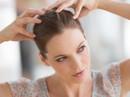 Cách đơn giản ngừa nấm tóc, ngứa da đầu mùa mưa