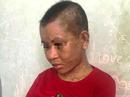 """Một phụ nữ nghi bị chủ tra tấn man rợ đến """"thân tàn ma dại"""""""