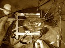 Phẫu thuật cứu bệnh nhân người Mỹ thoát chết trong gang tấc