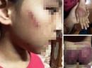 Mẹ rớt nước mắt thấy con gái 8 tuổi bị bố bạo hành thâm tím khắp người