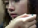 Nữ sinh viên bị cưỡng hôn trong thang máy lên tiếng sau khi làm việc với công an