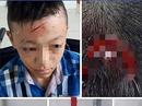 """Thực hư việc trường bị """"tố"""" bỏ mặc học sinh bị đánh chảy máu đầu"""