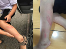 Làm bài kiểm tra học kỳ chậm, học sinh lớp 2 bị cô giáo tát vào thái dương, đánh tím chân