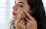 8 sai lầm cần tránh để có làn da sạch mụn