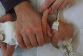 Y tá tự ý rút ống thở, bé sơ sinh tử vong