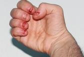 Chết đột ngột vì thói quen cắn móng tay