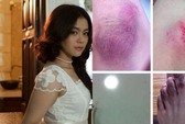 Lại thêm nữ ca sĩ bị cướp giật táo tợn tại TP HCM