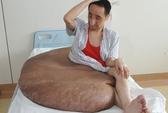 Người đàn ông mang khối u lớn nhất thế giới: 110 kg