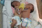 Hội chẩn tách 2 bé gái dính liền