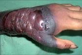 Dấu hiệu bạn nhiễm virus chết người Ebola