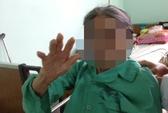 Tránh chó, cụ bà 95 tuổi té gãy khớp háng