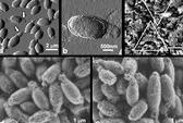 Chữa ung thư bằng vi khuẩn