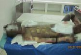 Con rể đổ xăng tự thiêu, cha vợ cũng bị bỏng toàn thân