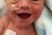 Nụ cười kỳ diệu của bé gái 5 ngày tuổi truyền cảm hứng khắp thế giới