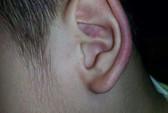 Trẻ bị cô nhéo bầm tai, đánh và quăng ra sàn