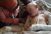 Ghê sợ nạn săn người bạch tạng ở Malawi