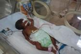 Bé gái sơ sinh suýt bị chôn sống có tiên lượng xấu