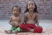 Ấn Độ: Hai chị em ruột cùng bị lão hóa