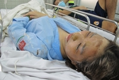 Sai lầm cần tránh khi sơ cứu nạn nhân bị dính axit