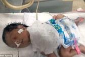 Mắc bệnh lạ, em bé sơ sinh có tim nằm ngoài lồng ngực