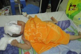 Bé 15 tháng tuổi văng khỏi xe máy, chấn thương sọ não