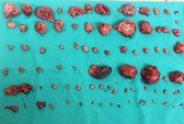 Bóc gần 100 khối u, nhiều khối đã vỡ trong ổ bụng 1 nam giới
