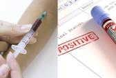 Thuốc ung thư… ngăn được HIV