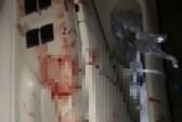 Bị cướp đâm gần chục nhát dao, tài xế taxi đến nhà dân cầu cứu