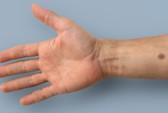 Nốt ruồi đặc biệt báo hiệu bệnh ung thư
