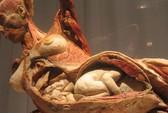 Cục Mỹ thuật nói gì về triển lãm cơ thể người ở TP HCM?