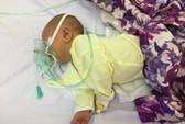 Cắt rốn bằng kéo tại nhà, bé sơ sinh 6 ngày tuổi tử vong